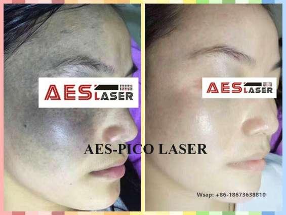 Distributor of pico laser, ipl, hifu, co2 fractional laser, cryolipolysis and etc.